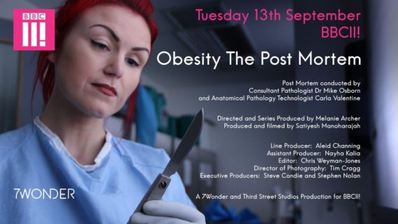 Carla Valentine in Obesity the Post Mortem produced by 7 Wonder for BBC Three